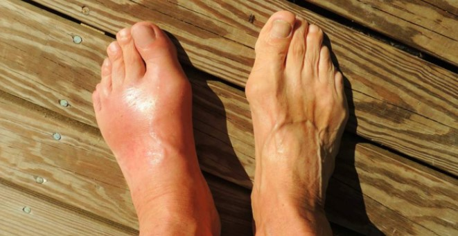 5 Causes Of Gout
